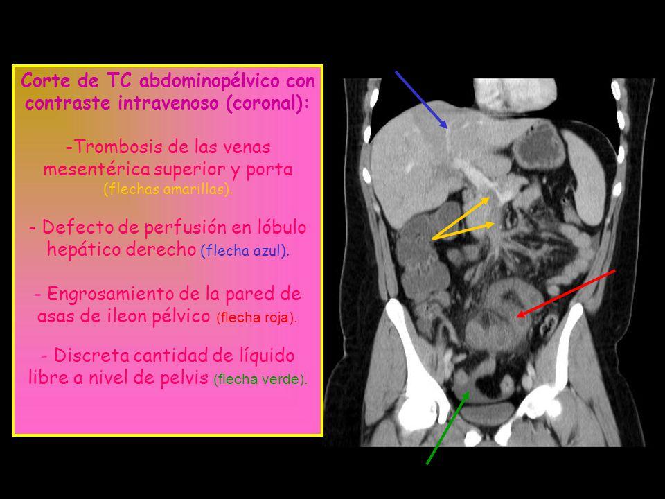 Corte de TC abdominopélvico con contraste intravenoso (coronal):