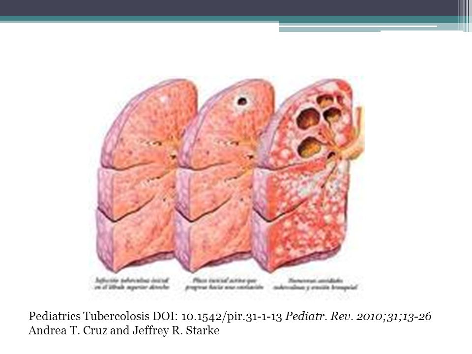 Pediatrics Tubercolosis DOI: 10. 1542/pir. 31-1-13 Pediatr. Rev