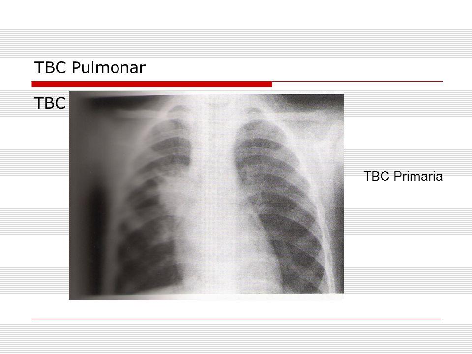 TBC Pulmonar TBC TBC Primaria