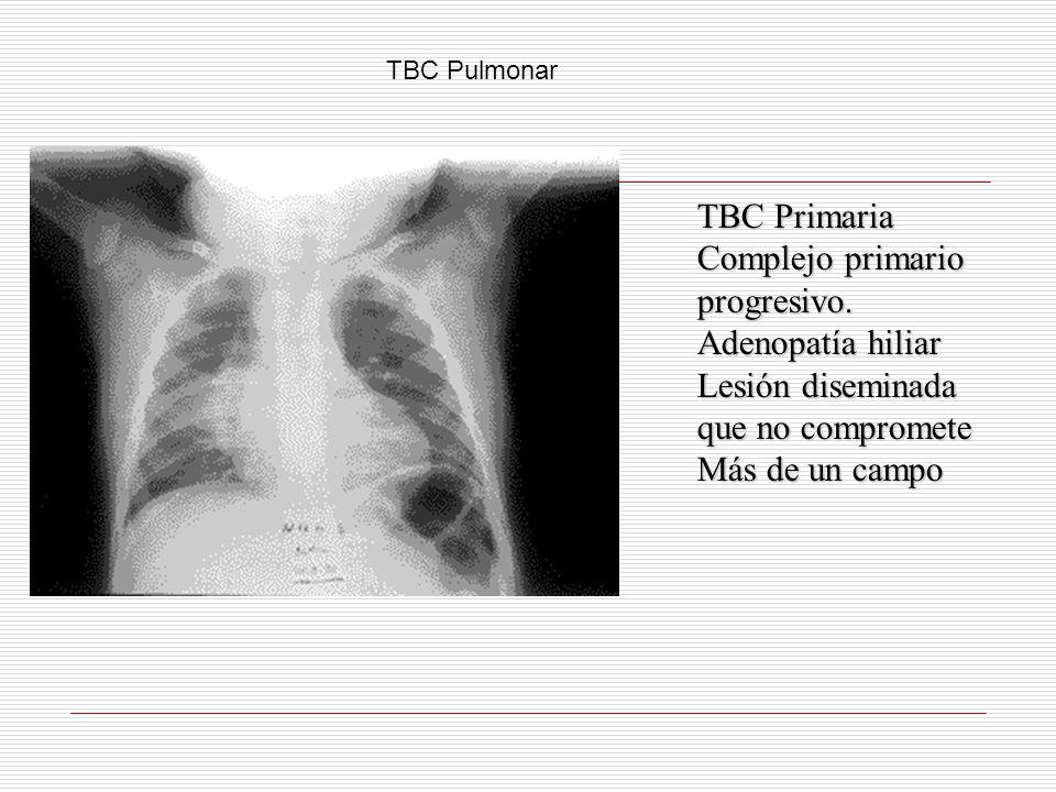 TBC Primaria Complejo primario progresivo. Adenopatía hiliar
