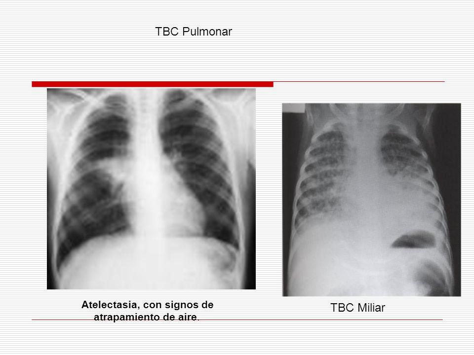 TBC Pulmonar TBC Miliar Atelectasia, con signos de
