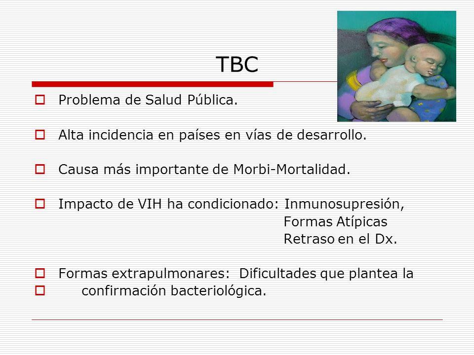 TBC Problema de Salud Pública.