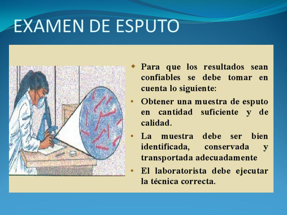 EXAMEN DE ESPUTO