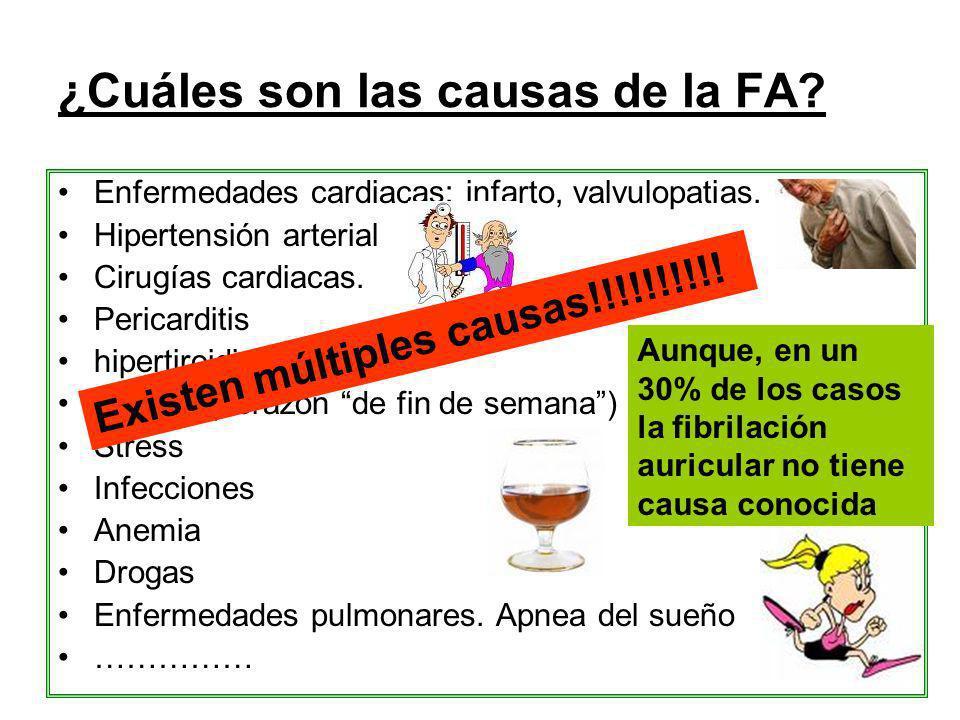 ¿Cuáles son las causas de la FA