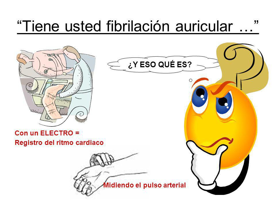 Tiene usted fibrilación auricular …