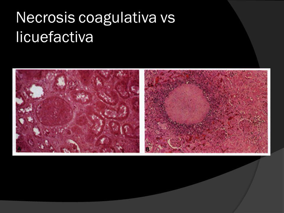 Necrosis coagulativa vs licuefactiva