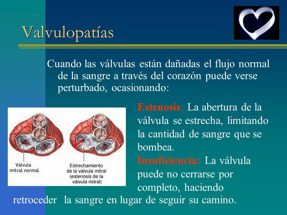 Valvulopatías Cuando las válvulas están dañadas el flujo normal de la sangre a través del corazón puede verse perturbado, ocasionando: