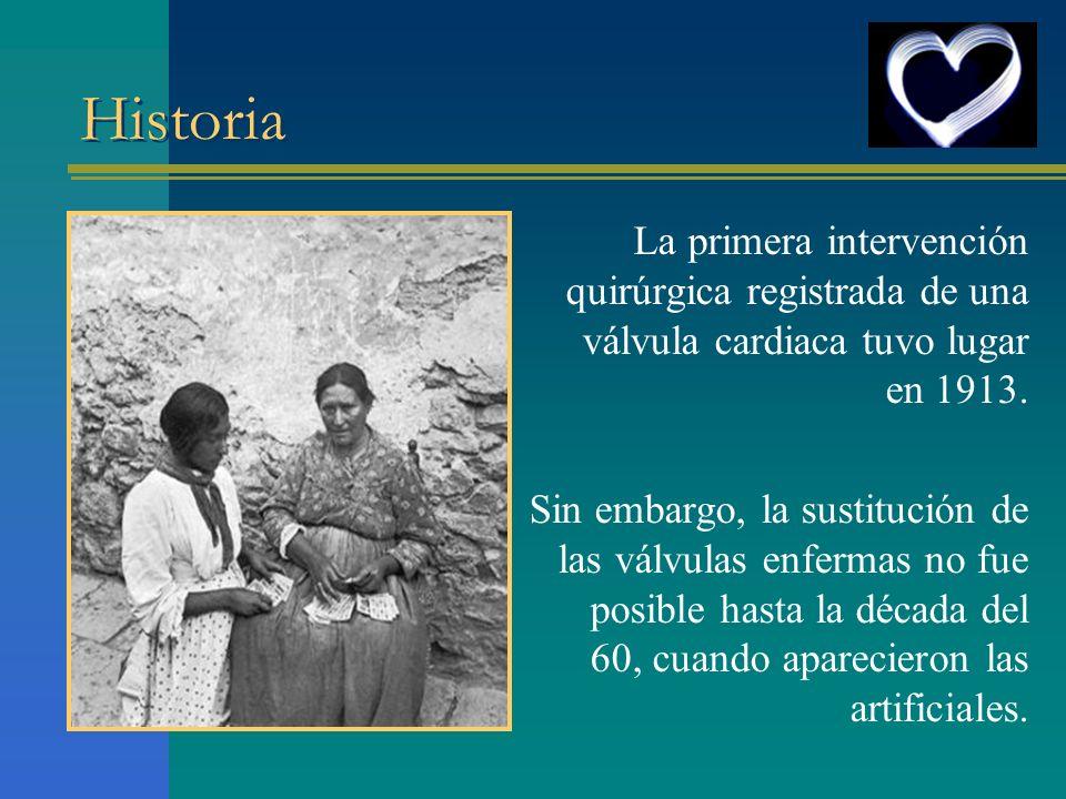 Historia La primera intervención quirúrgica registrada de una válvula cardiaca tuvo lugar en 1913.