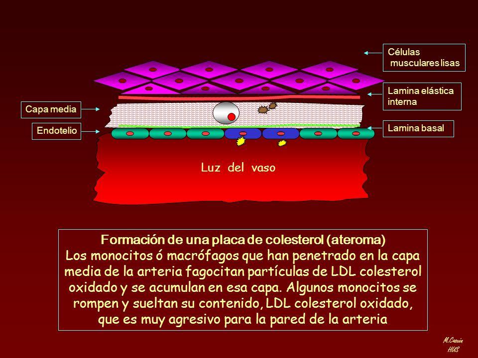 Formación de una placa de colesterol (ateroma)