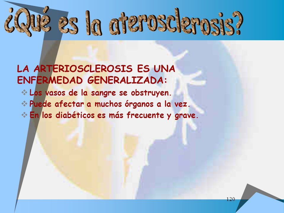 ¿Qué es la aterosclerosis