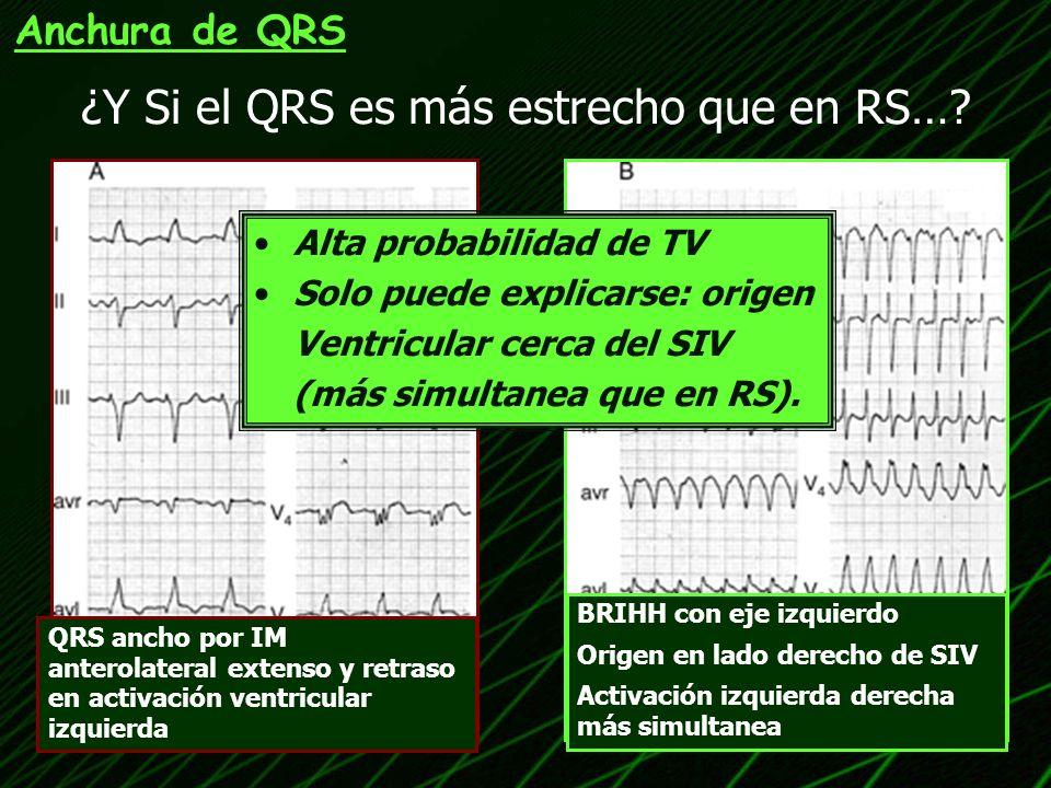 ¿Y Si el QRS es más estrecho que en RS…