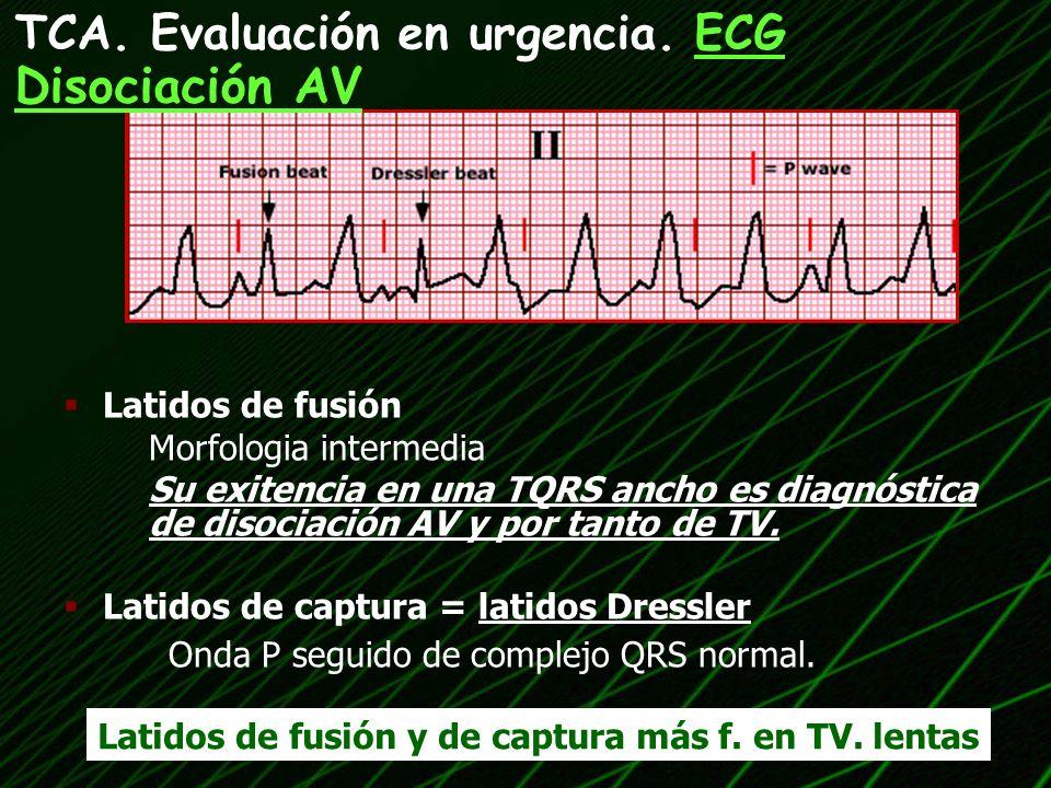 TCA. Evaluación en urgencia. ECG Disociación AV