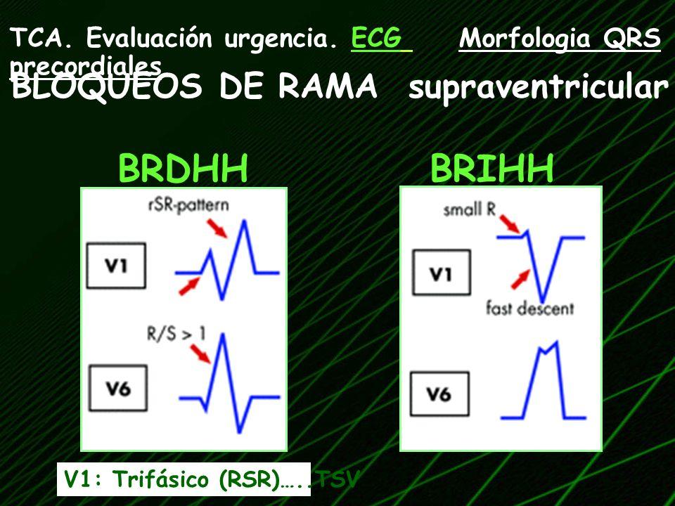BLOQUEOS DE RAMA supraventricular