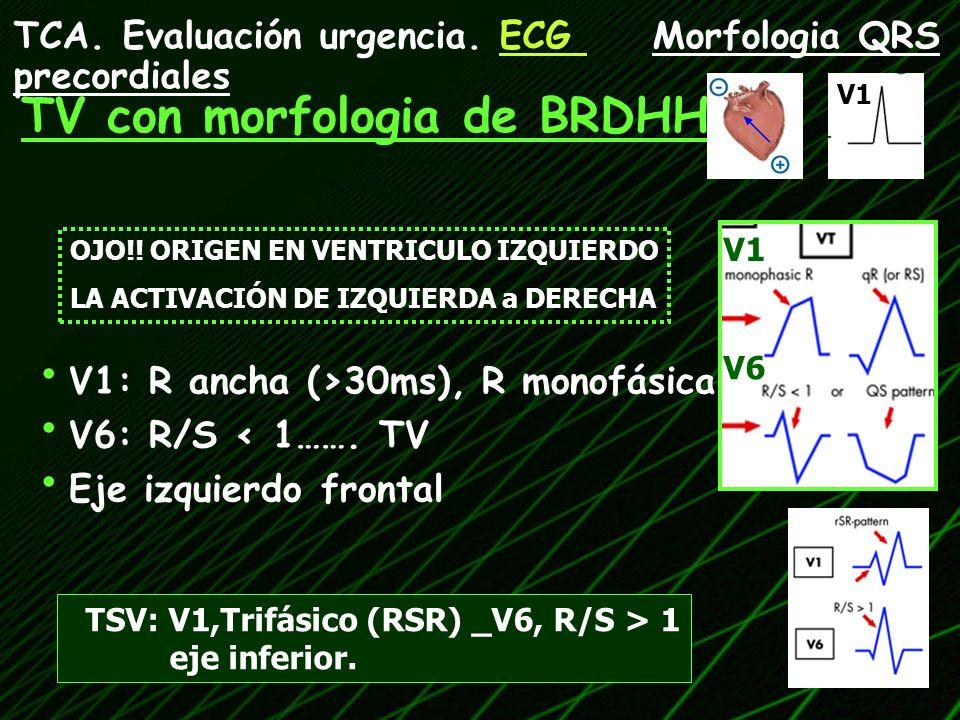 TV con morfologia de BRDHH