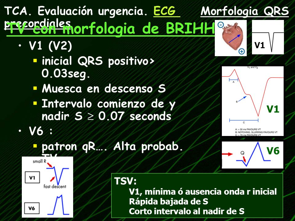 TV con morfologia de BRIHH