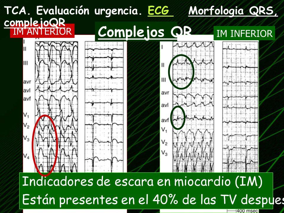 Complejos QR Indicadores de escara en miocardio (IM)