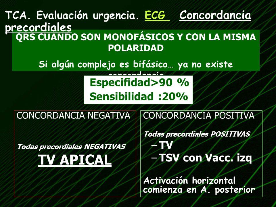 TV APICAL TCA. Evaluación urgencia. ECG Concordancia precordiales