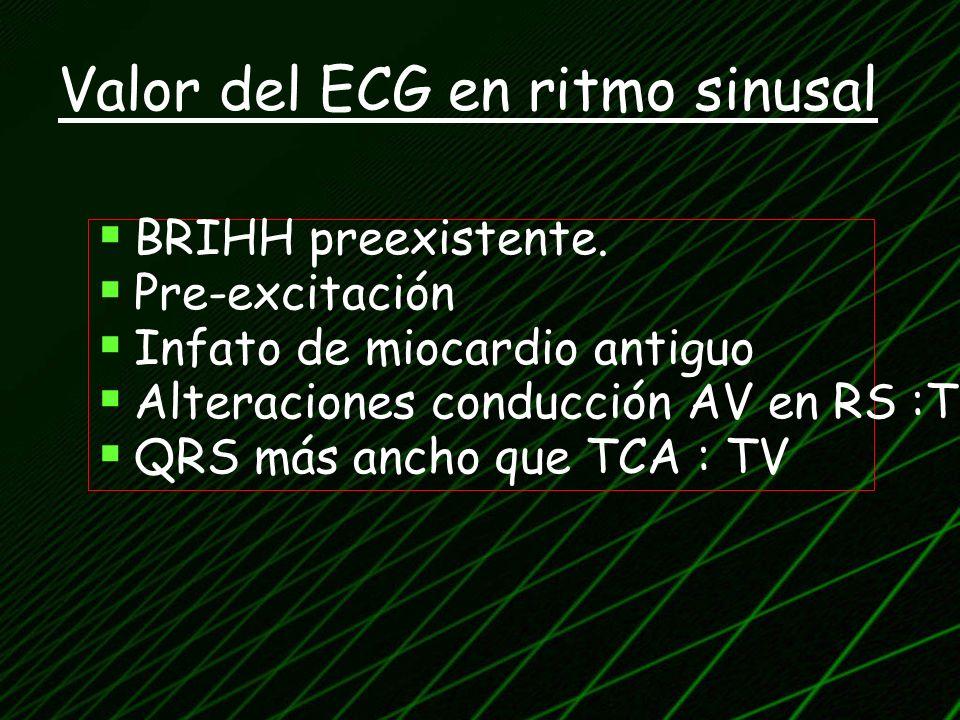 Valor del ECG en ritmo sinusal