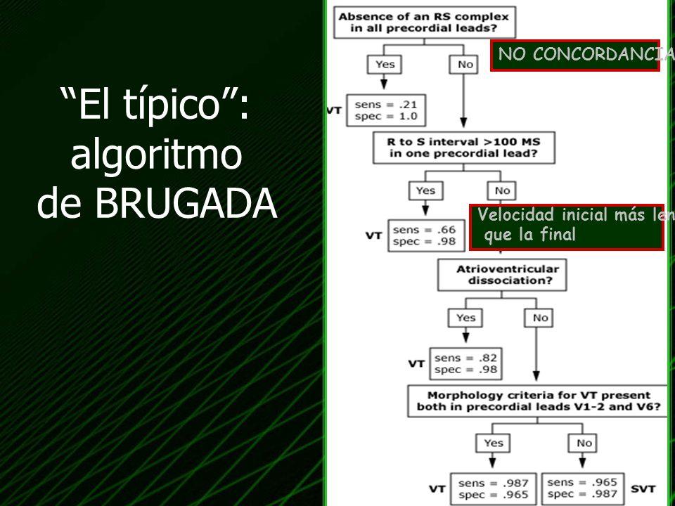El típico : algoritmo de BRUGADA