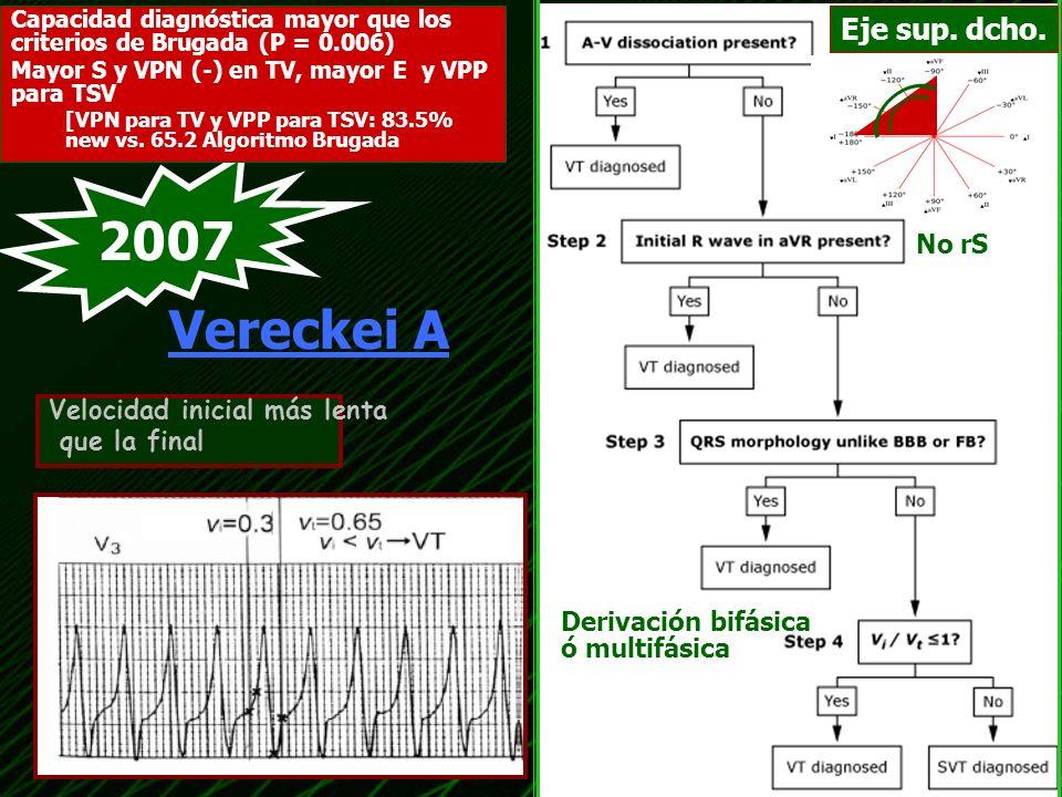 2007 Vereckei A Eje sup. dcho. No rS Velocidad inicial más lenta