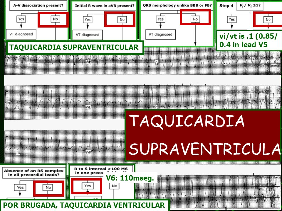 TAQUICARDIA SUPRAVENTRICULAR vi/vt is .1 (0.85/ 0.4 in lead V5