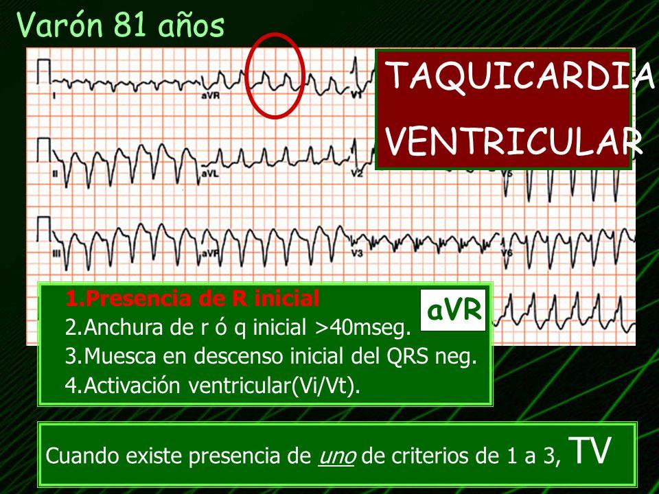 TAQUICARDIA VENTRICULAR Varón 81 años aVR Presencia de R inicial