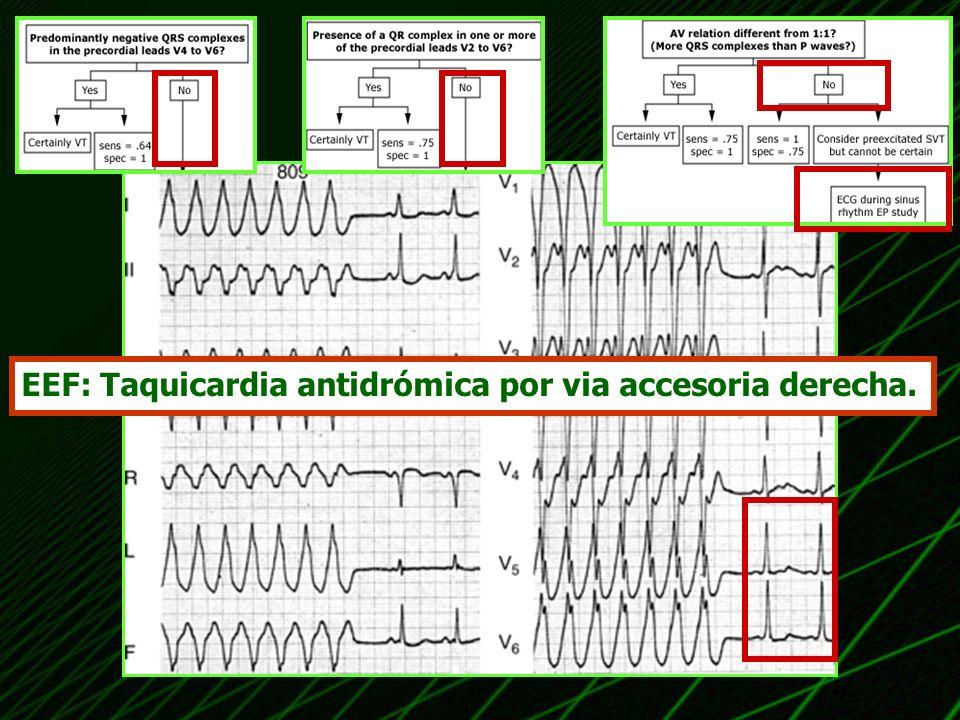EEF: Taquicardia antidrómica por via accesoria derecha.