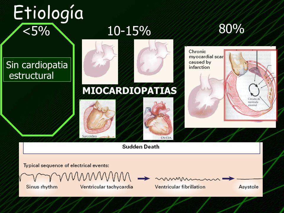 Etiología 80% <5% 10-15% Sin cardiopatia estructural