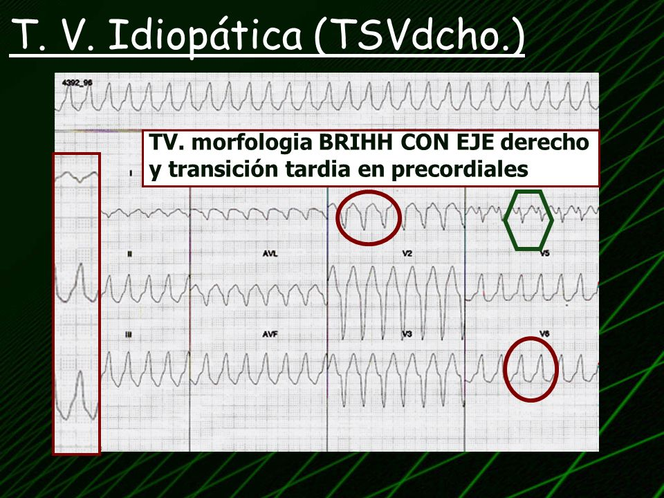 T. V. Idiopática (TSVdcho.)