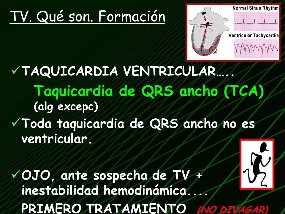 TV. Qué son. Formación TAQUICARDIA VENTRICULAR…..