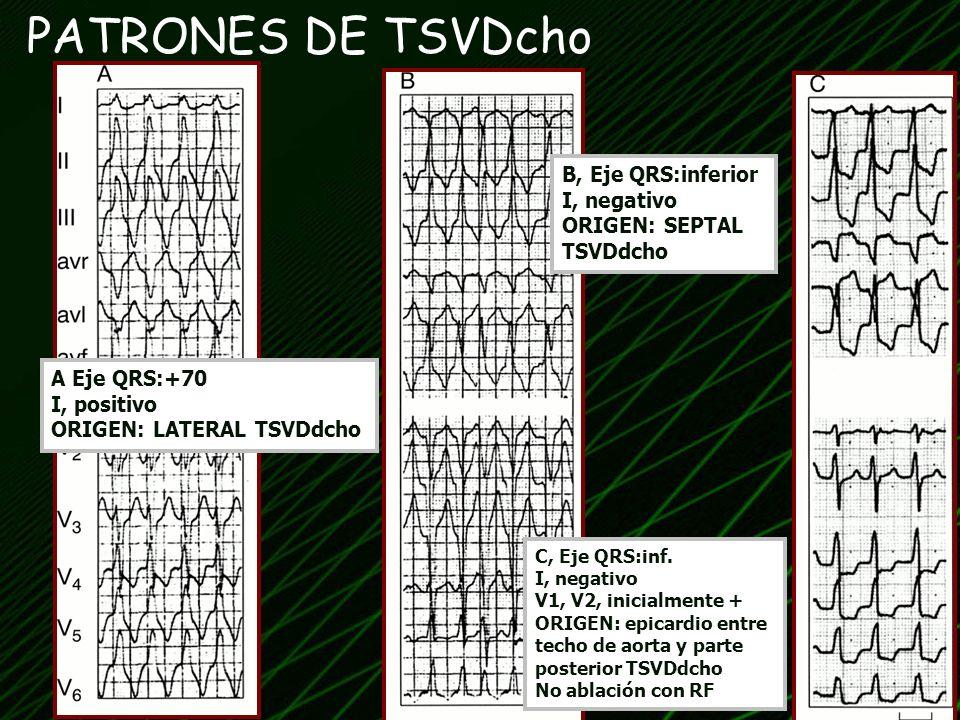 PATRONES DE TSVDcho B, Eje QRS:inferior I, negativo ORIGEN: SEPTAL