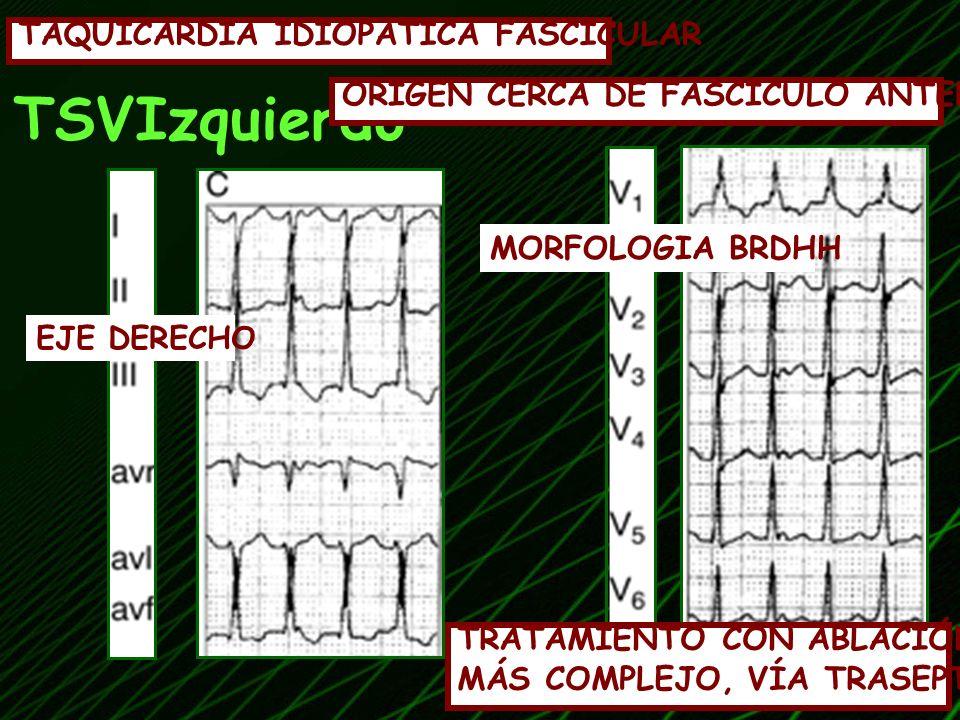 TSVIzquierdo TAQUICARDIA IDIOPATICA FASCICULAR