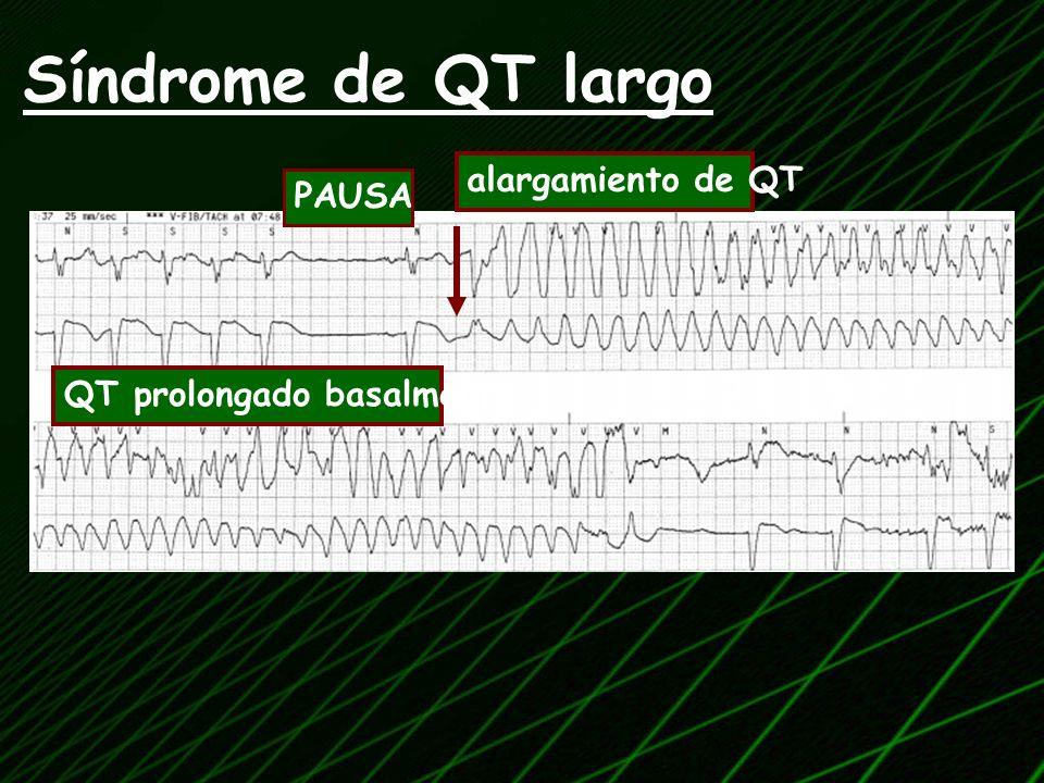 Síndrome de QT largo alargamiento de QT PAUSA QT prolongado basalmente