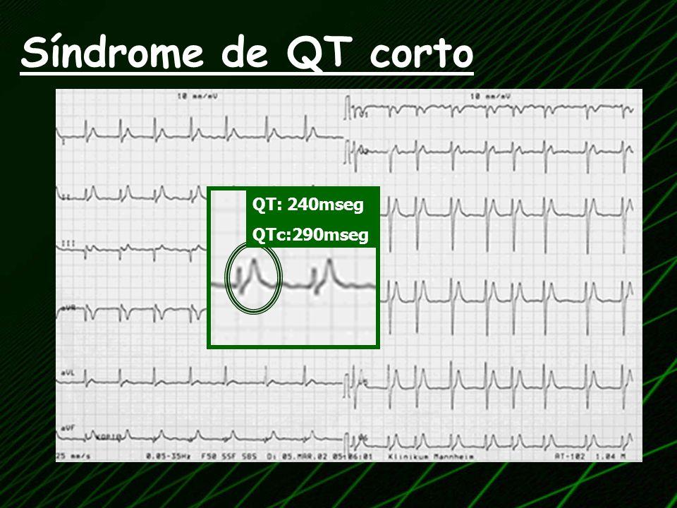 Síndrome de QT corto QT: 240mseg QTc:290mseg