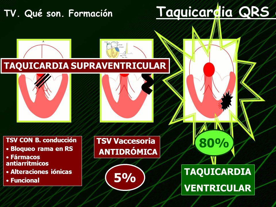 80% 5% TV. Qué son. Formación Taquicardia QRS ancho TAQUICARDIA