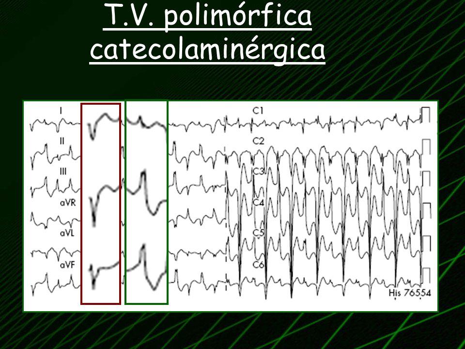 T.V. polimórfica catecolaminérgica