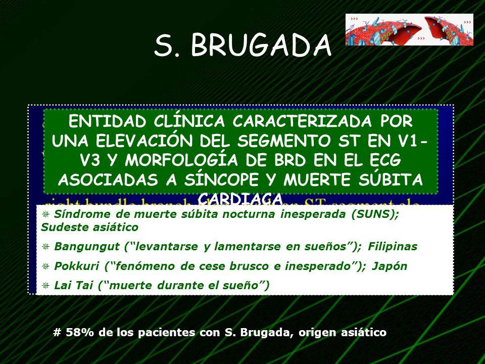 S. BRUGADA