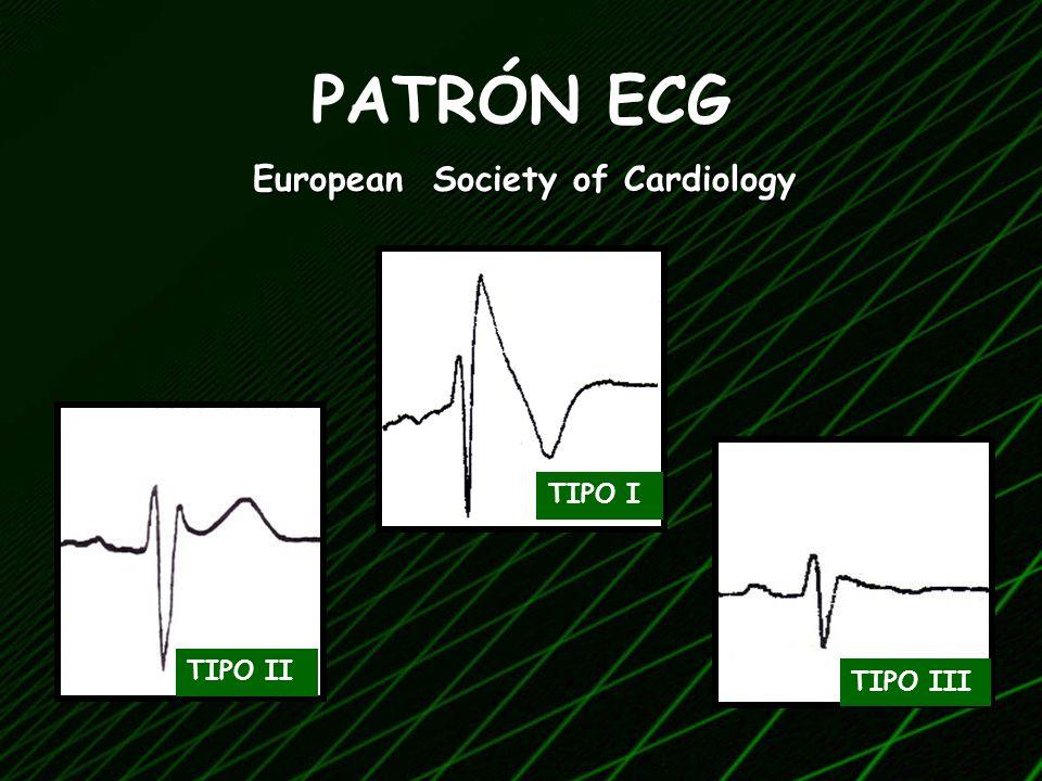 PATRÓN ECG European Society of Cardiology TIPO I TIPO II TIPO III