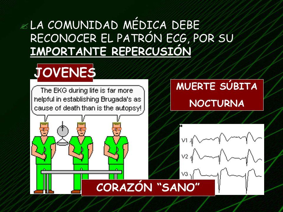 LA COMUNIDAD MÉDICA DEBE RECONOCER EL PATRÓN ECG, POR SU IMPORTANTE REPERCUSIÓN