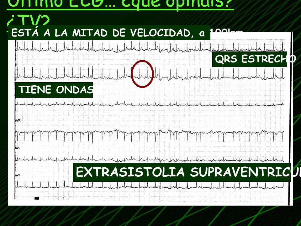 Último ECG… ¿qué opinais ¿TV