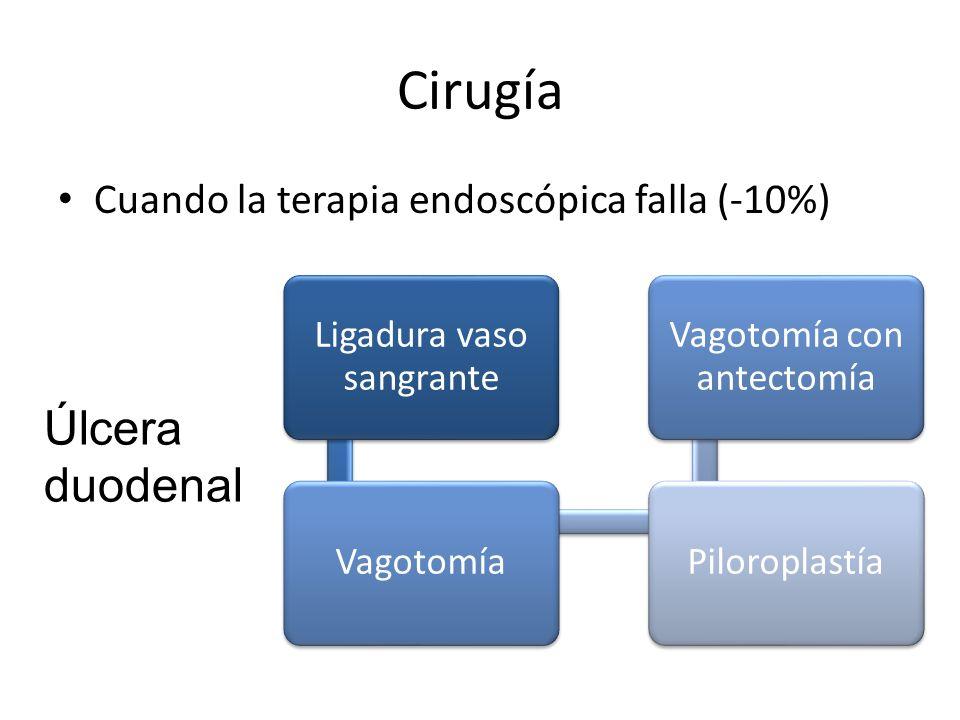 Cirugía Úlcera duodenal Cuando la terapia endoscópica falla (-10%)