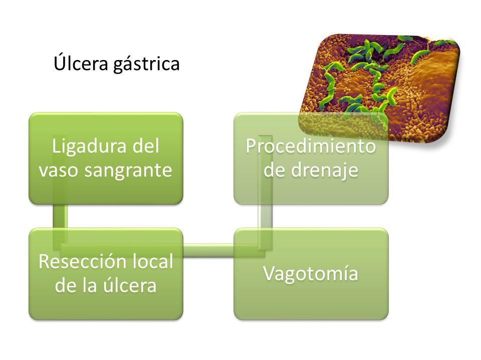 Ligadura del vaso sangrante