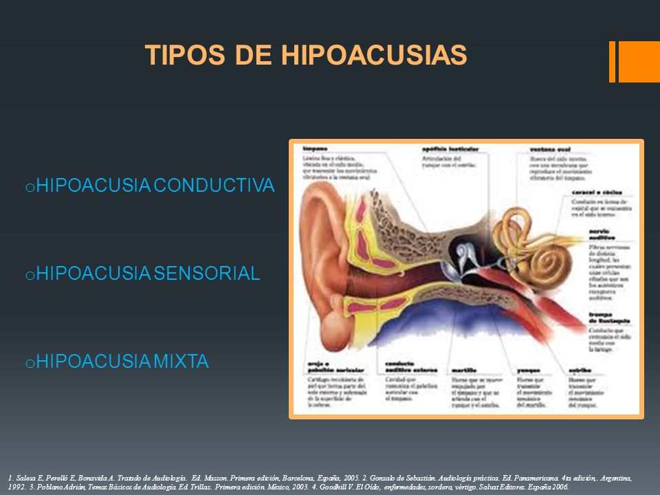 TIPOS DE HIPOACUSIAS HIPOACUSIA CONDUCTIVA HIPOACUSIA SENSORIAL