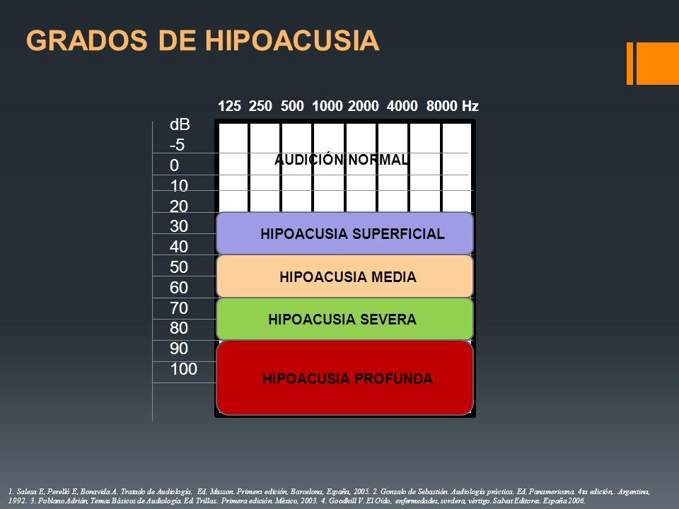 HIPOACUSIA SUPERFICIAL