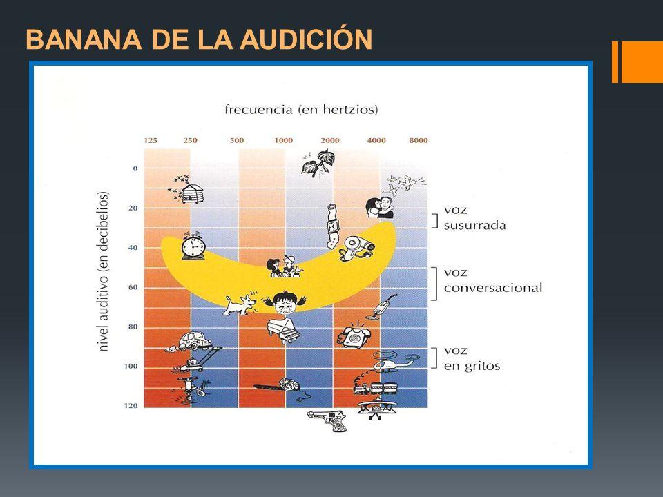 BANANA DE LA AUDICIÓN