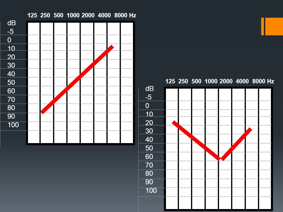 dB -5. 10. 20. 30. 40. 50. 60. 70. 80. 90. 100. 125 250 500 1000 2000 4000 8000 Hz.