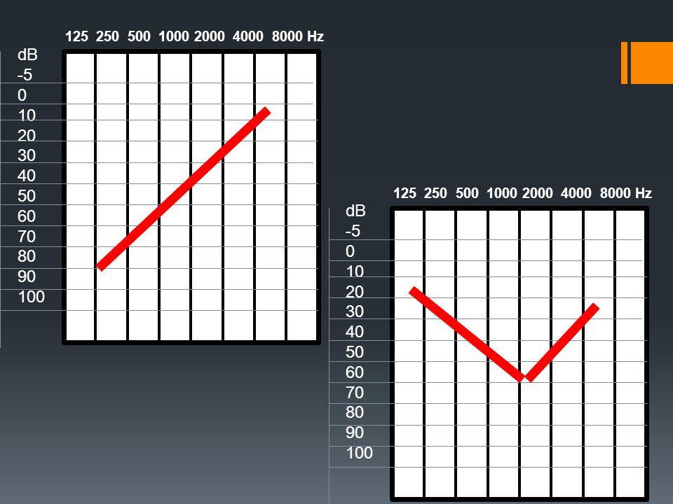 dB-5. 10. 20. 30. 40. 50. 60. 70. 80. 90. 100. 125 250 500 1000 2000 4000 8000 Hz. dB. -5. 10.