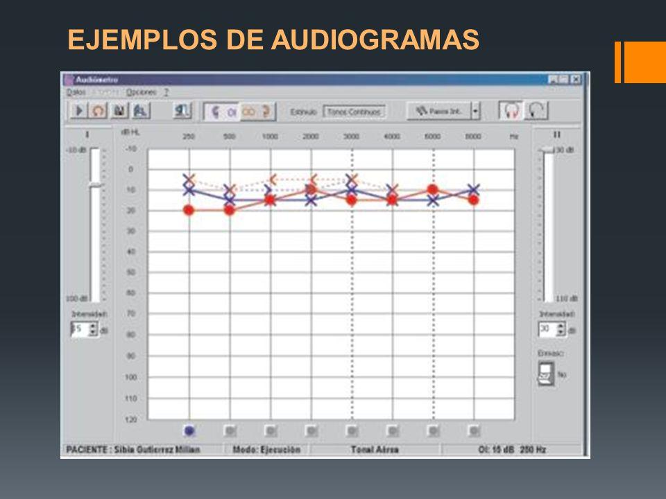EJEMPLOS DE AUDIOGRAMAS