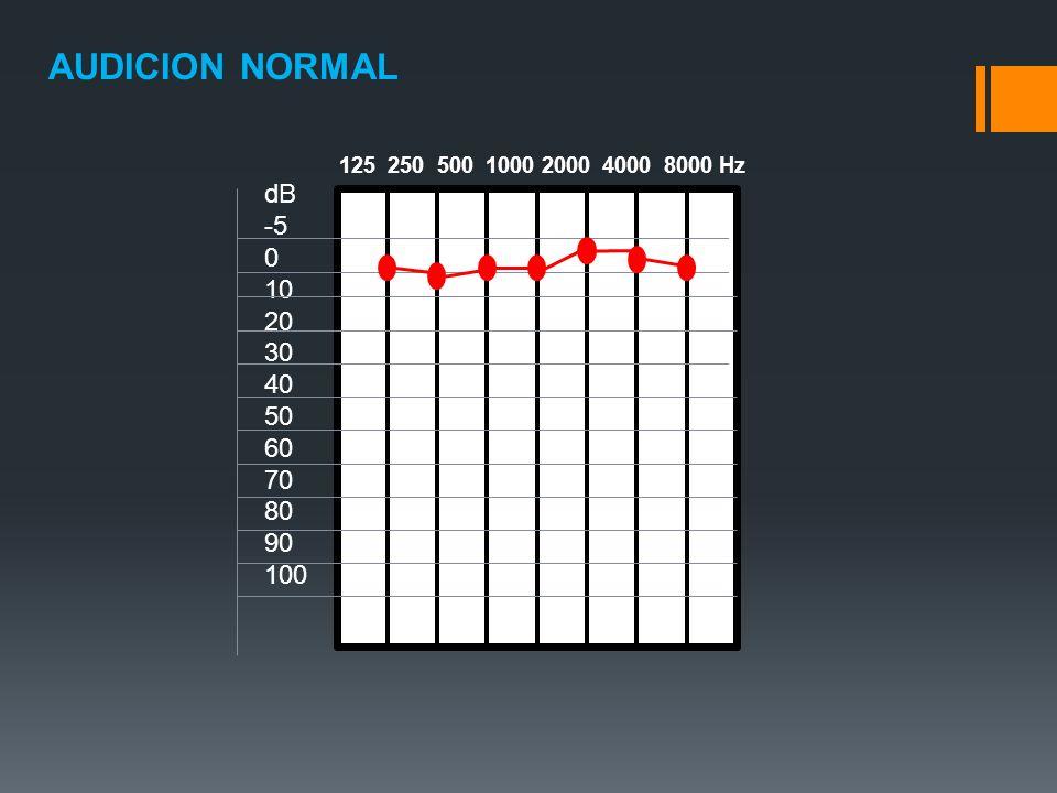 AUDICION NORMAL dB -5 10 20 30 40 50 60 70 80 90 100 125 250 500 1000 2000 4000 8000 Hz