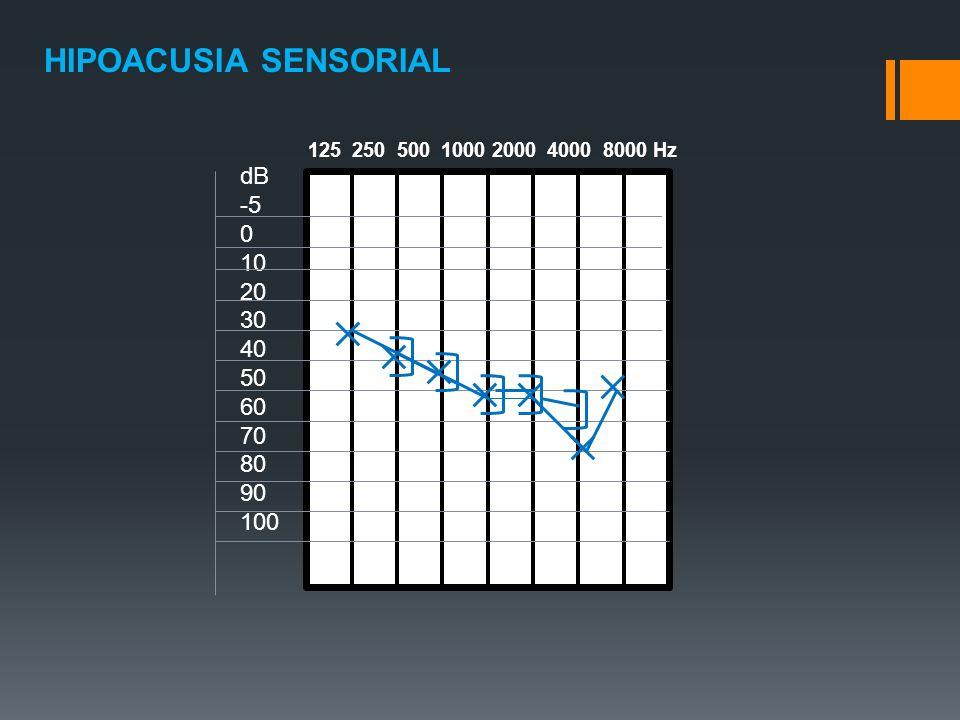 HIPOACUSIA SENSORIAL dB -5 10 20 30 40 50 60 70 80 90 100